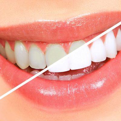Tire suas dúvidas sobre clareamento dental