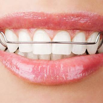 Ortodontia Funcional