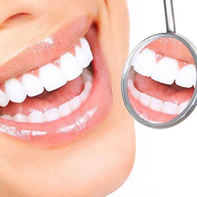 Ortodontia Estética: Três tratamentos para cuidar do seu sorriso
