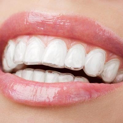 O sorriso perfeito com o Aparelho Invisalign®: o escolhido pelos adultos
