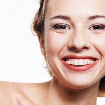 Como saber se preciso usar aparelho dental?