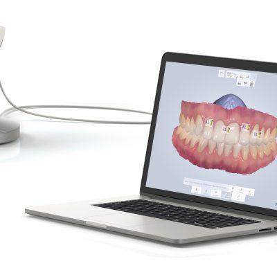 Scanner Intraoral e Alinhadores Ortodônticos – Invisalign® e Orthoaligner®: a tecnologia a favor dos seus dentes