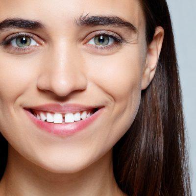 Diastema: como a ortodontia pode corrigir os dentes separados?