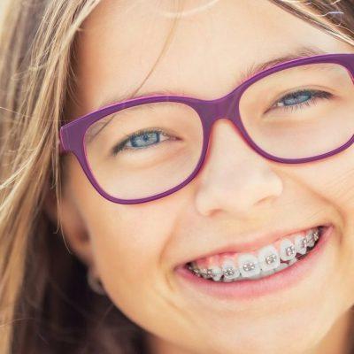 Aparelhos de enfeite e os riscos à saúde bucal